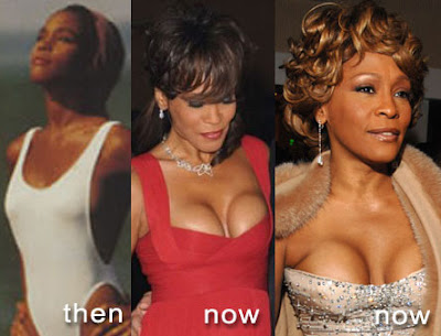 What So You Think About Whitney Houston's Plastic Surgery Decision