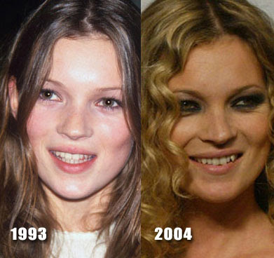 kate moss. Kate Moss Nose Job