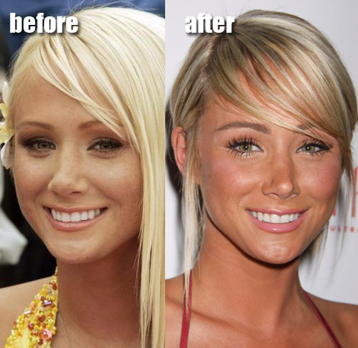 Sara Jean Underwood before and after nose job plastic surgery.