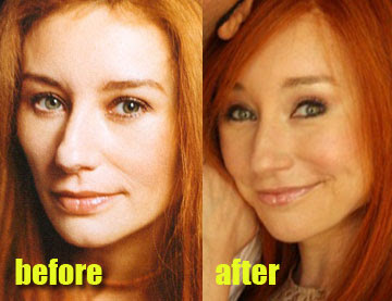Tori Amos plastic surgery before and after pictures (image courtesy of http://www.plasticcelebritysurgery.com)