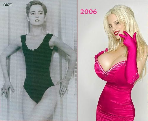 Sabrina sabrok breast implants before after cosmetic plastic