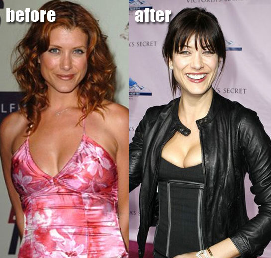 Kate Walsh before and after breast implants plastic surgery?