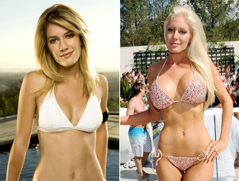heidi montag before plastic surgery. Heidi Montag Before And After