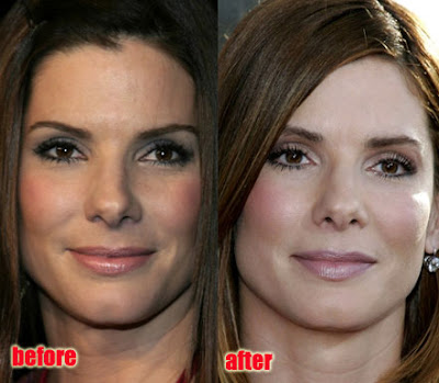 Claire Danes Plastic Surgery on Sandra Bullock Plastic Surgery   Before   After Pictures 2012