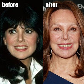 Marlo Thomas before and after nosejob? (image hosted by http://www.plasticcelebritysurgery.com)