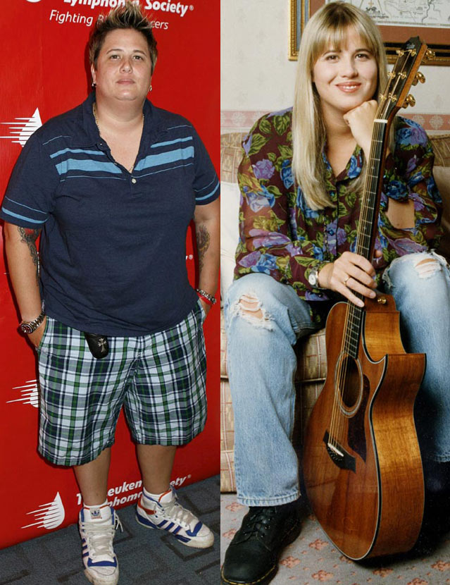 Chastity/Chaz Bono Before And After Surgery