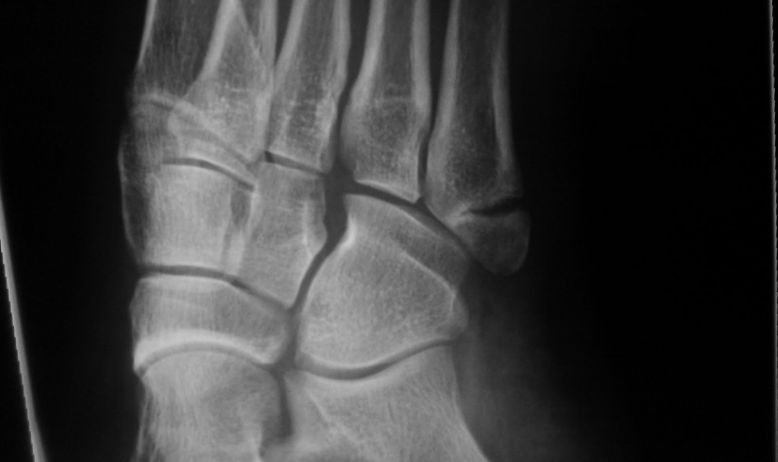 Fracture base of the fifth metatarsal-1.bp.blogspot.com