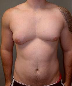 Асиметрична гинекомастия