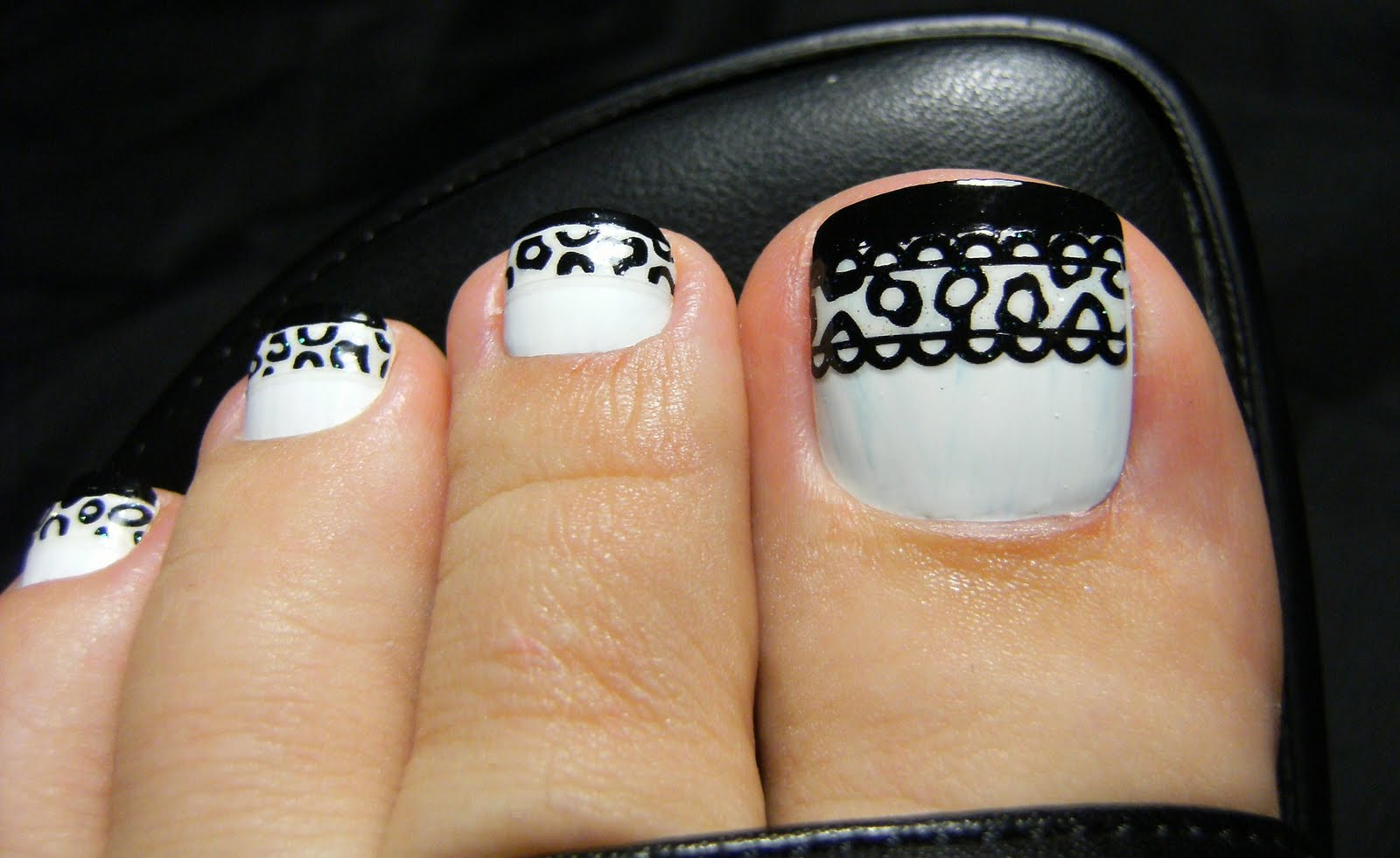 What do horizontal white lines on toenails indicate? | ChaCha