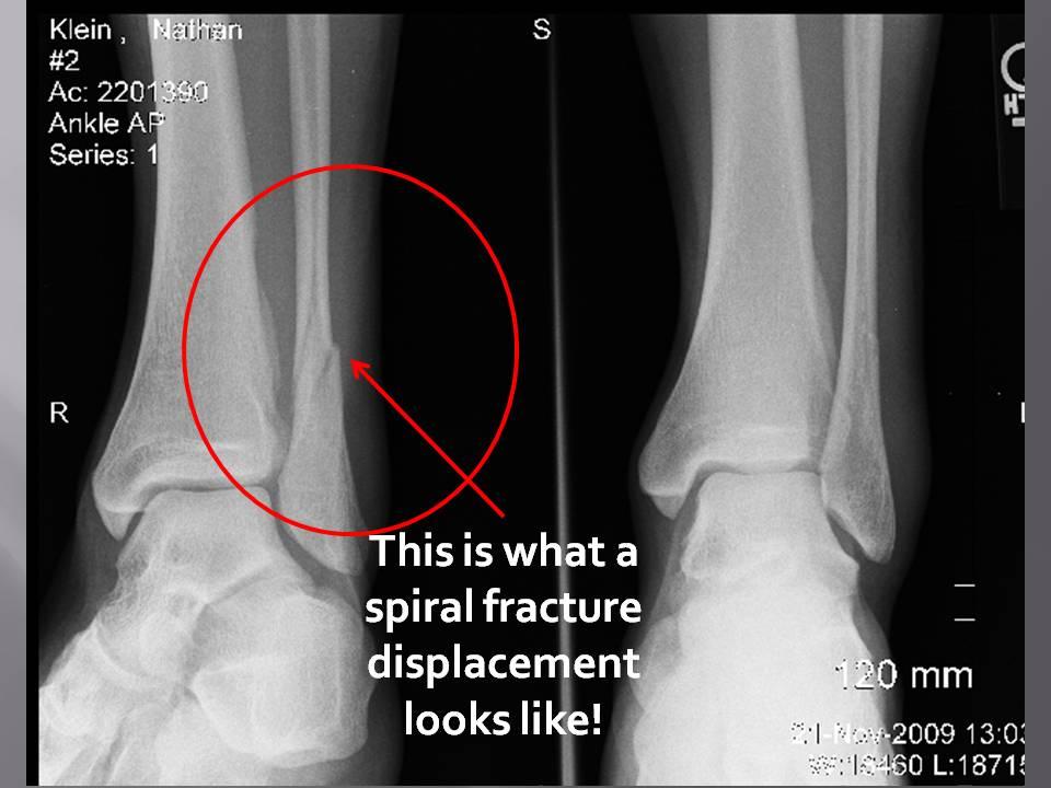 Spiral Fracture Fibula-1.bp.blogspot.com