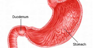 How is gastritis revealed