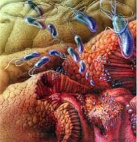 What are the causes of gastritis?