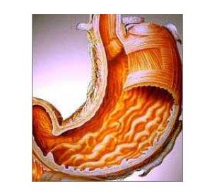 Antral Gastritis