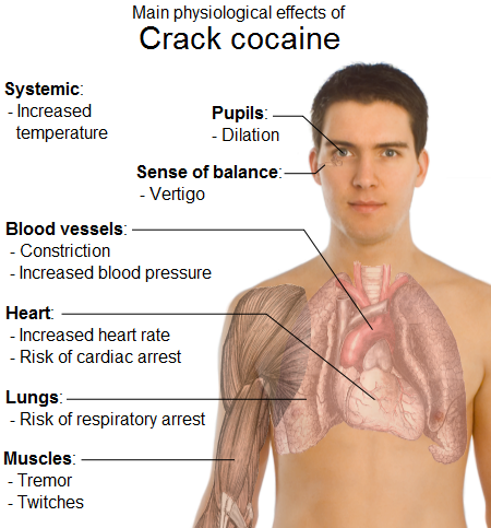 effects of cocaine and crack cocaine Crack cocaine is a potent and addictive stimulant derived from powder cocaine one of the short-term and more severe effects of crack cocaine abuse is the potential for overdose it is possible for an overdose to happen the first time someone takes crack cocaine and unexpectedly during future use.