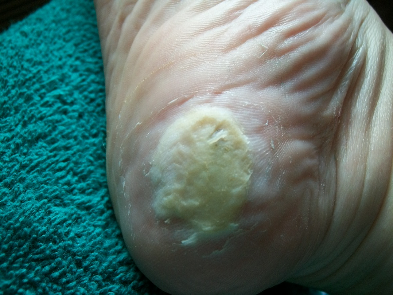 Magnificent Planters Wart Root Diagram Plantar Warts Verrucae Diagnosis Better Wiring 101 Archstreekradiomeanderfmnl