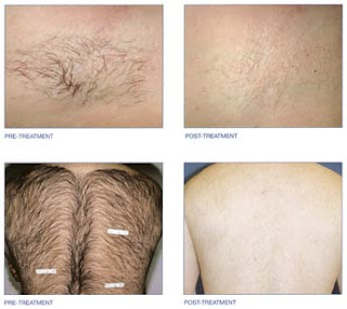 Permanent Hair Removal Methods