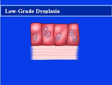 low - grade dysplasia