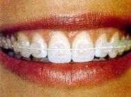 Belleza estetica de la mujer actual,Beneficios de la Ortodoncia,tratamiento oseos de los dientes,maxilofacial,crecimiento esqueletico,huesos de la cara,mala posicion de los dientes,aspecto de la cara,tratamientos de ortodoncia,aparatos fijos de ortodoncia,brackets,encias,problemas articulares,odontologia,odontologia especializada,irregularidades dentofaciales,colocacion perfecta de los dientes,armonia facial,sonrisas bonitas,sonrisas sanas,dientes sanos,caries,enfermedad periodental,rostro atractivo,master en ortodoncia,autoestima,aceptacion social,coqueteria,salud,dentista,odontologo,dentofacial,dientes amontonados,espacios entre los dientes,dientes salidos,breckets de ceramica,esmalte de los dientes,relaciones sociales,boca saludable,proceso biologico,movimiento dental,aparatos de ortodoncia,retenedores linguales fijos,retenedores linguales movibles,sobrecargas musculares,dolores de cabeza,dolores de cuello,dolores de oidos,dientes alineados,trituracion de los alimentos,rechinamiento de dientes,apretamiento de las piezas dentales,dientes desgastados,gingivitis,placa bacteriana,periodonto,periodontopatias,trauma oclusal,enfermedades periodontales,enfermedades de la encia,salud periodental,encias