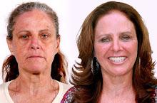 Antes e depois programa 10 anos mais jovem sbt