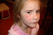 Brookelynns sledding scar.