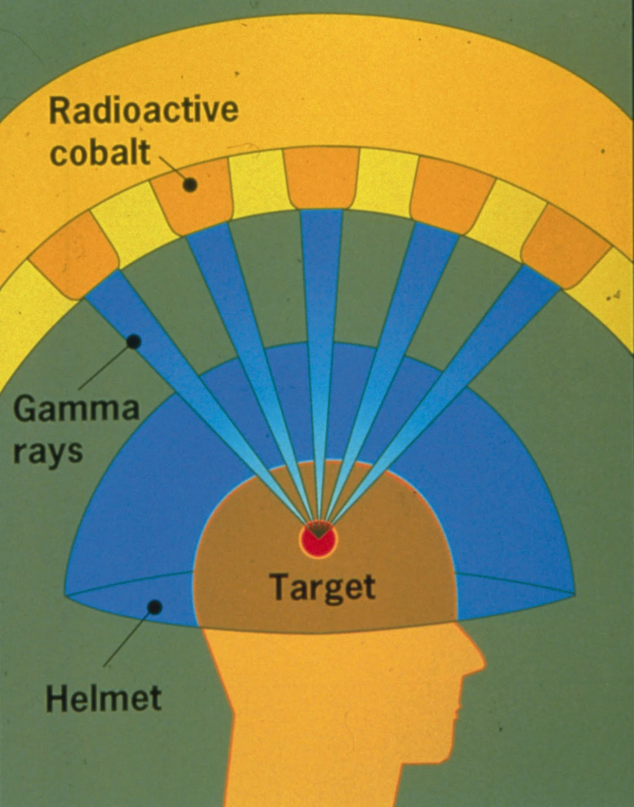 an examination of the effects of gamma rays on skin cancer Radiation - reproductive organs effectiveness to 10 ergs energy of gamma radiation transferred to one gram of effects on the incidence of cancer.