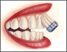 Φροντίζω τα δόντια μου ...