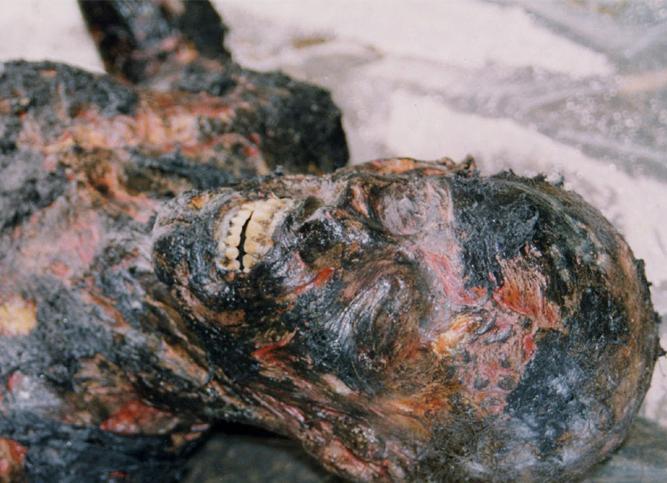 burnt_corpse_taggart.jpg