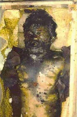 exh01 Foto Foto Penggalian Mayat Yang mengerikan
