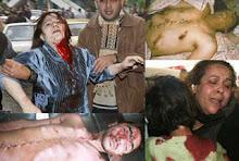 foto-foto kedurjanaan Israel terhadap umat Islam