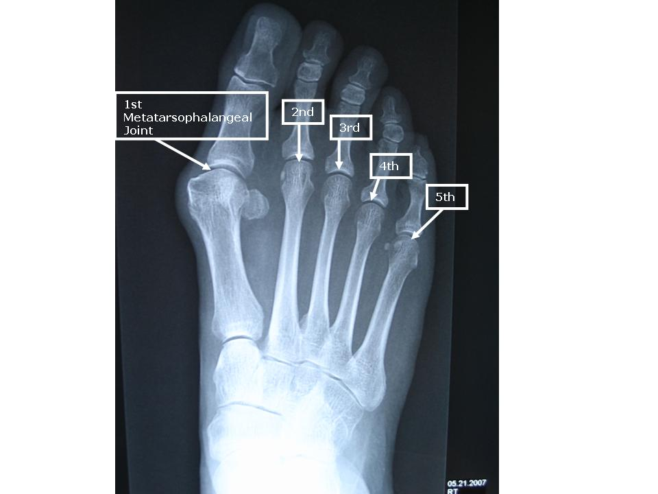 Mtp Joint Foot. Metatarsophalangeal = 2