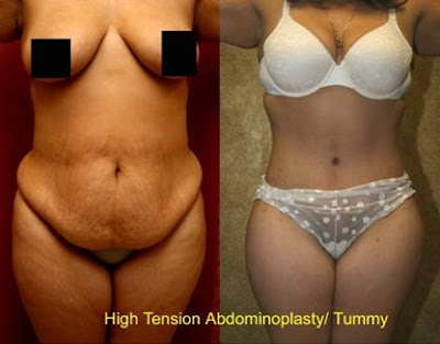Abdominoplasty Before And After. (Abdominoplasty) Images