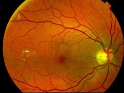 Fond d'oeil d'une rétinopathie