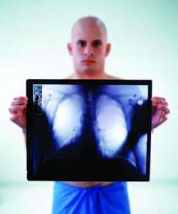 Informatii medicale despre tuberculoza