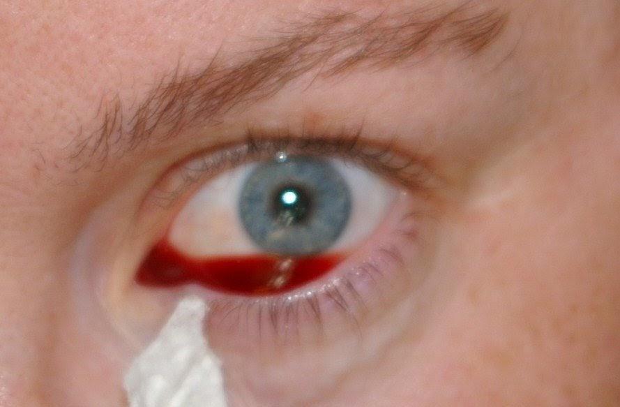 varför får man blödning i ögat