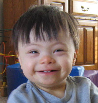 Down Syndrome boy