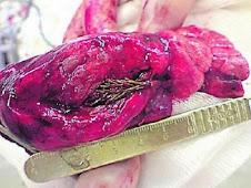 arbol creciendo en un pulmon