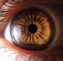 IRIDOLOGI (mengesan penyakit melalui mata)