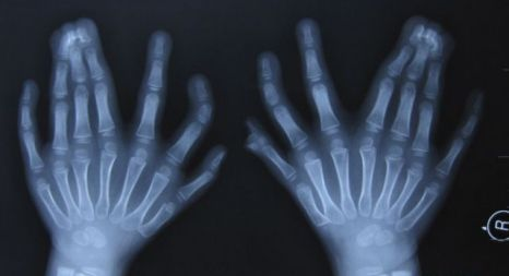 Central Polydactyly