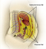 visceral fat pooch belly