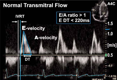 Mitral and tricuspid annular velocities in constrictive