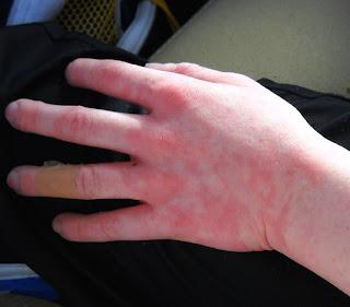 аллергия на руках фото начальная стадия