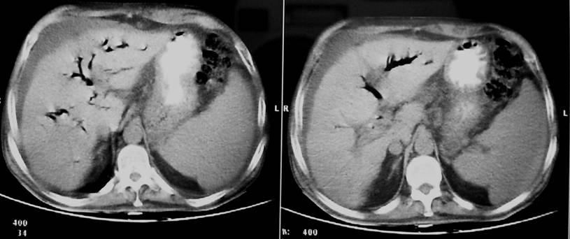 radiologia convencional: CASO CUKIER: ADENOCARCINOMA DE LA AMPOLLA ...