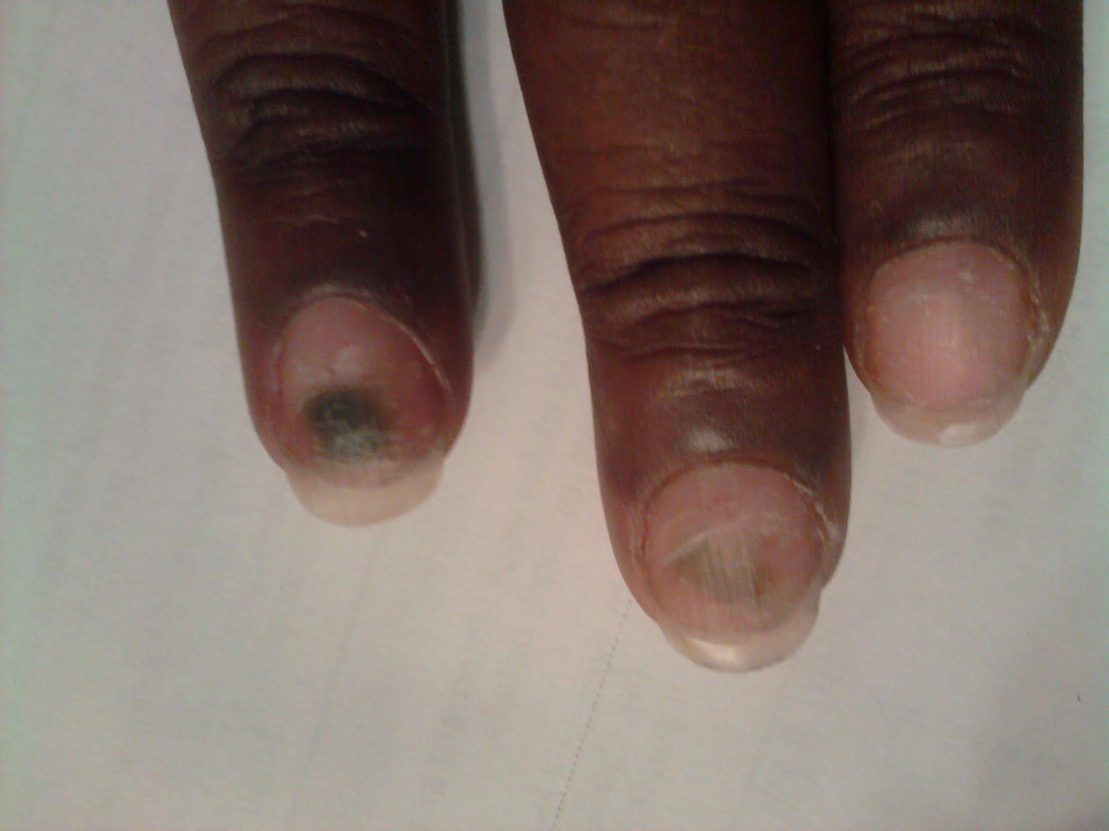 Nail Infection From Fake Nails#%