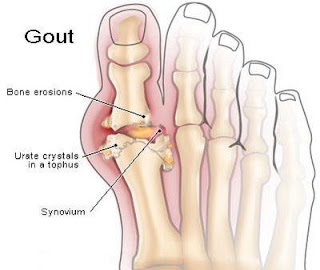 Gouty%2BArthritis Gout Symptoms Causes Remedies Causes Prevention Pain%2BRelief Cures attack Tips Facts Treatments Louviers Easy Arthritis Cure