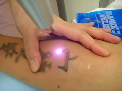 Laser Tattoo Removal - How Effective Will it Be?