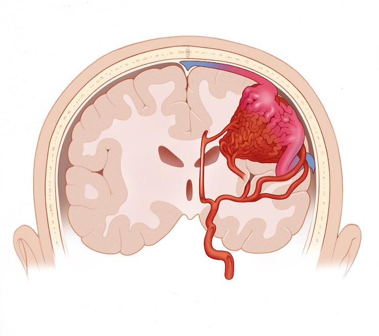 Dural Arteriovenous Fistula: Dural Arteriovenous Fistula: dural ...