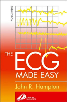The ECG Made Easy 11