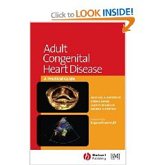 Adult Congenital Heart Disease: A Practical Guide  3