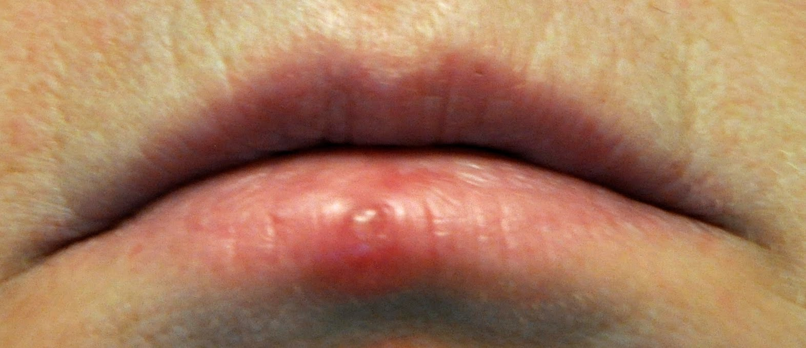what is herpes symptoms eye