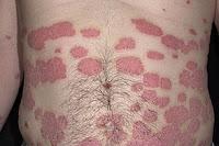 Фото псориаза на груди, животе